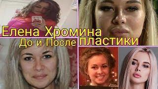 Елена Хромина До и После ПЛАСТИКИ. НОВОСТИ Дом 2 раньше эфира!