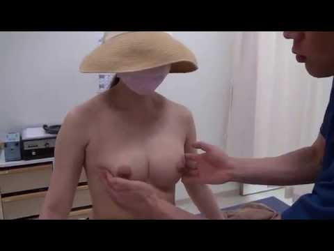 高須クリニック 豊胸手術後3カ月の経過 腫れ、痛み、効果、感触、柔らかさ、固さ、ダウンタイム 美容整形外科動画
