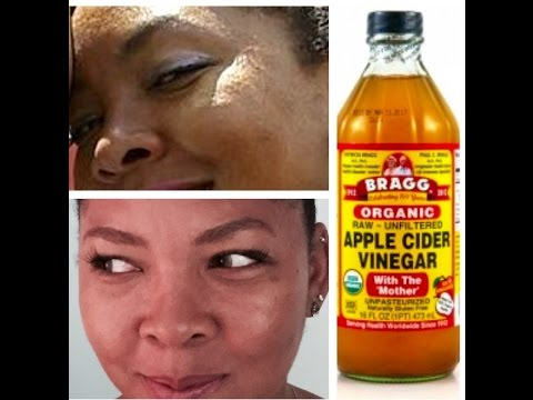 apple cider vinegar for hyperpigmentation