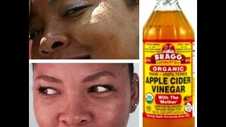 How To Clear Acne With Apple Cider Vinegar | DIY Day