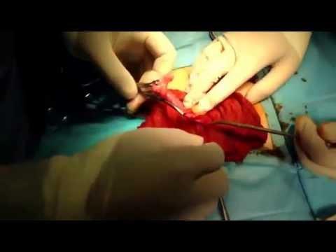 Операция по удалению аппендицита: реабилитация и питание после
