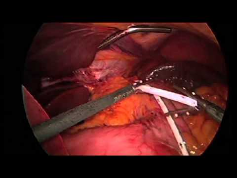 Laparoscopic Adjustable Gastric Band Demonstration: Memorial Weight-Loss Surgery Program