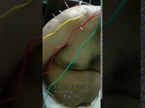 Electro Acupuncture for Paralysis Video - 3