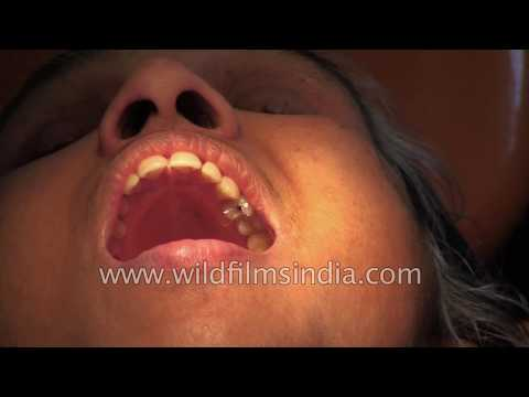 Root Canal treatment in India