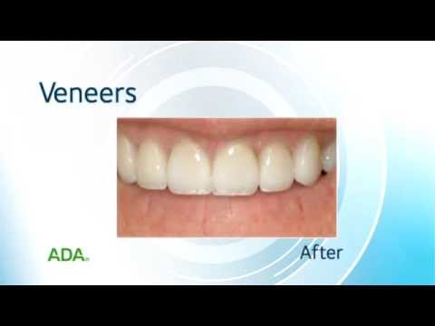 Dental Veneers: What Are Veneers? | Aspen Dental