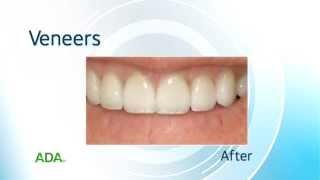 Toothflix® ADA© - Veneers