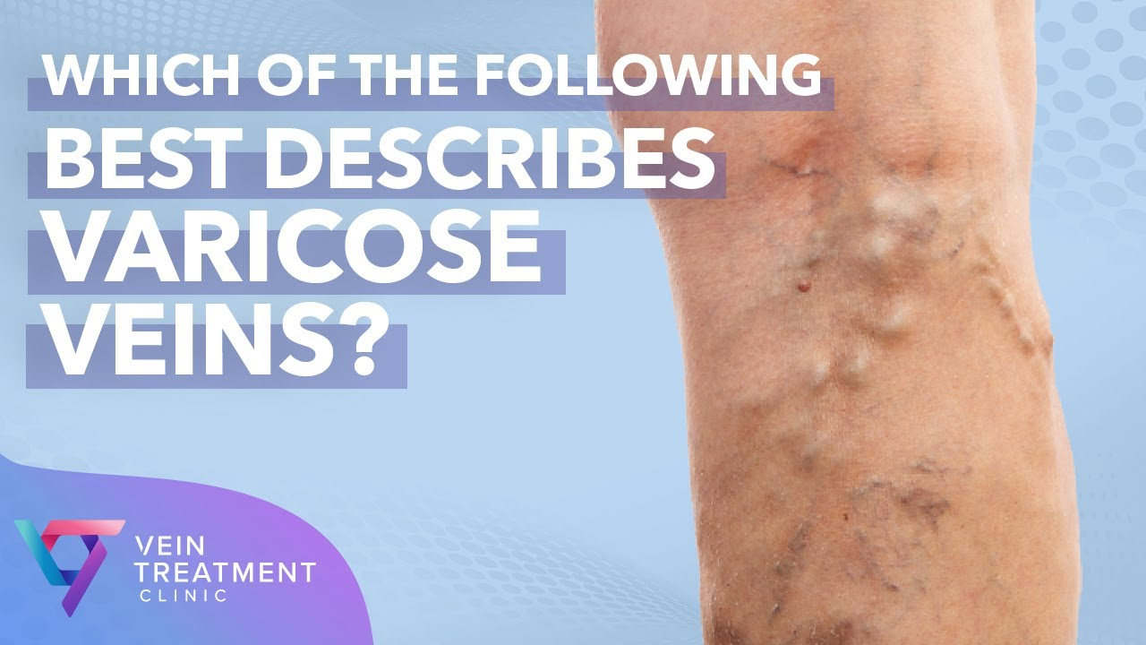 Medical Center: Which of the following best describes varicose veins | Vein Treatment Center