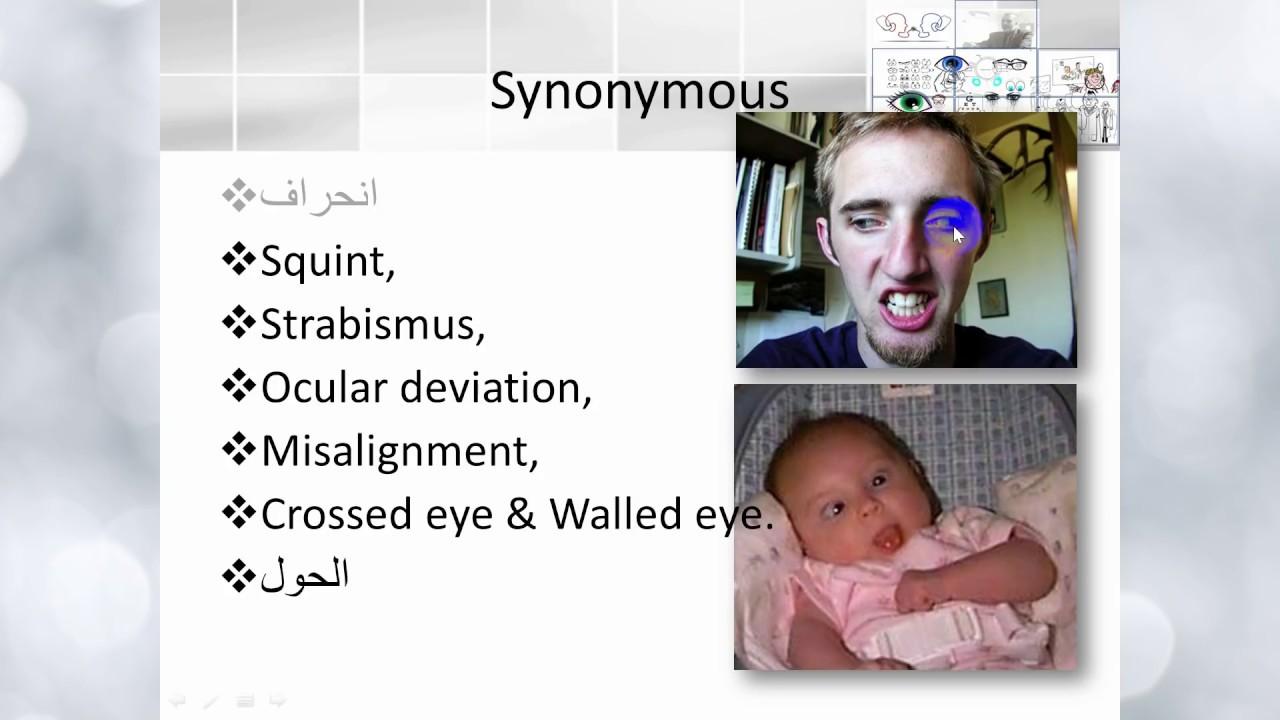orthophoria látás