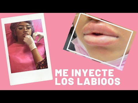 Me INYECTÉ Los LABIOS - Janeli Morales