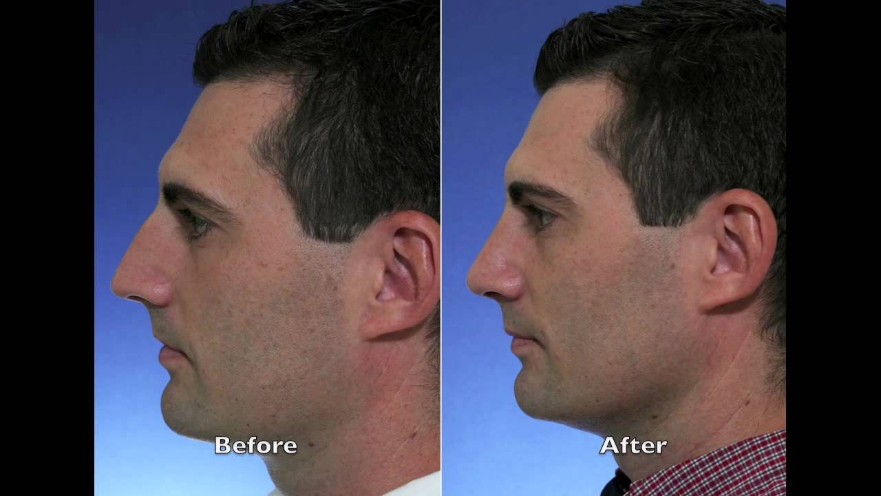 Rhinoplasty Before And After Ft. Lauderdale ...