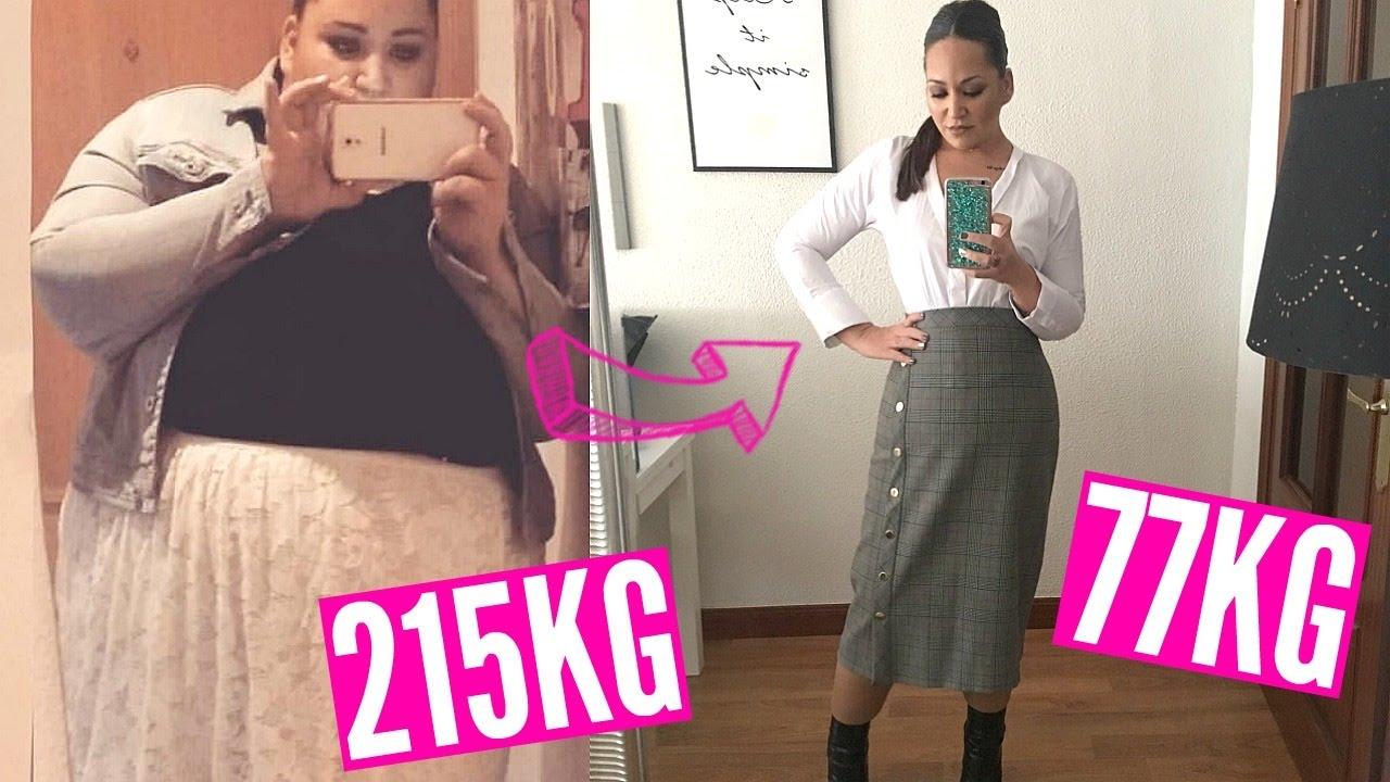 pérdida de peso de 30 lb después de la abdominoplastia