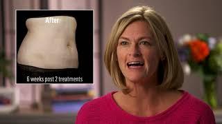 Sun Factory Tanning & Spa - SculpSure Patient Testimonials