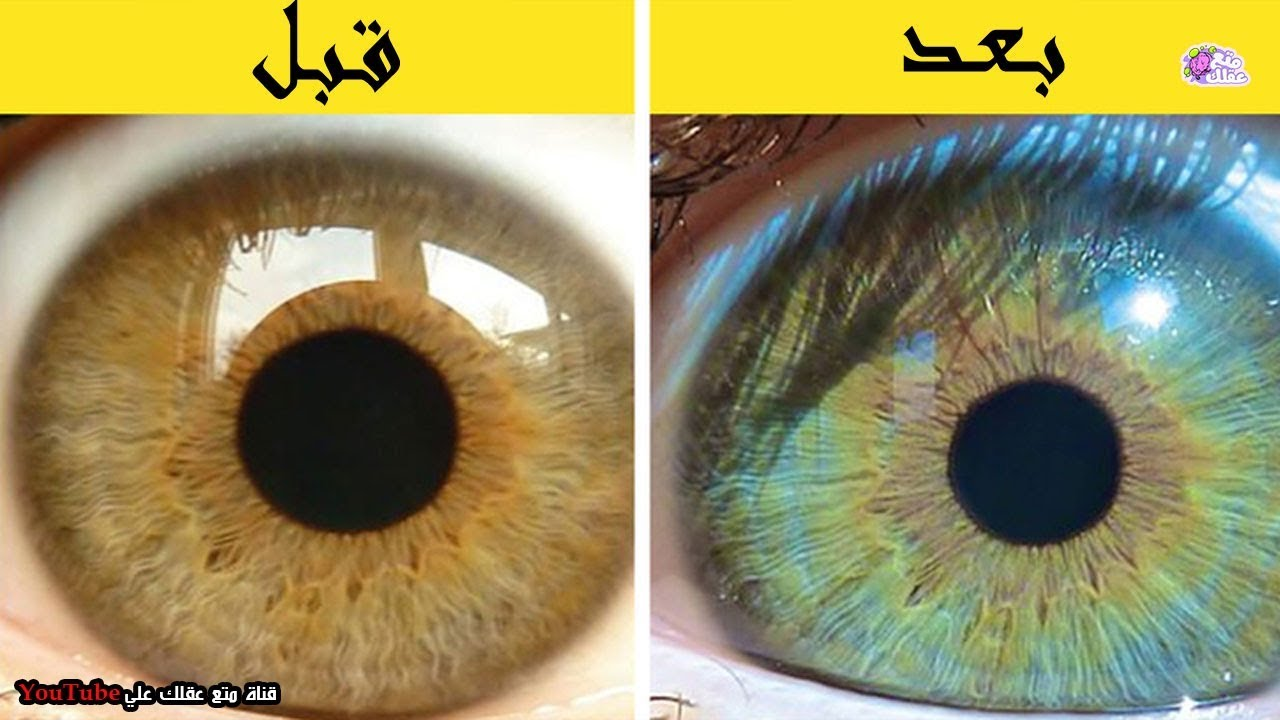 6 أشياء يمكنها تغيير لون عينيك Youtube