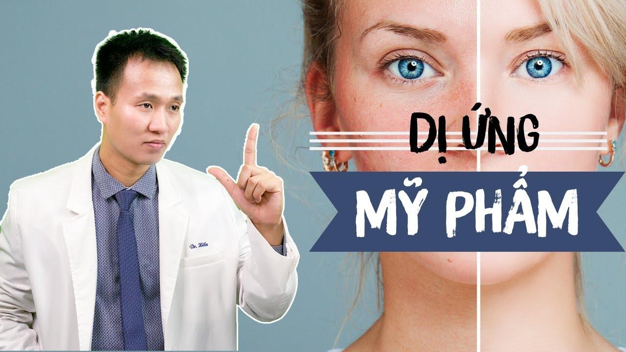 [P2]  Dị Ứng  Mỹ phẩm – Kích ứng – Xử trí thế nào cho Đúng | TIPS skincare routine | Dr Hiếu