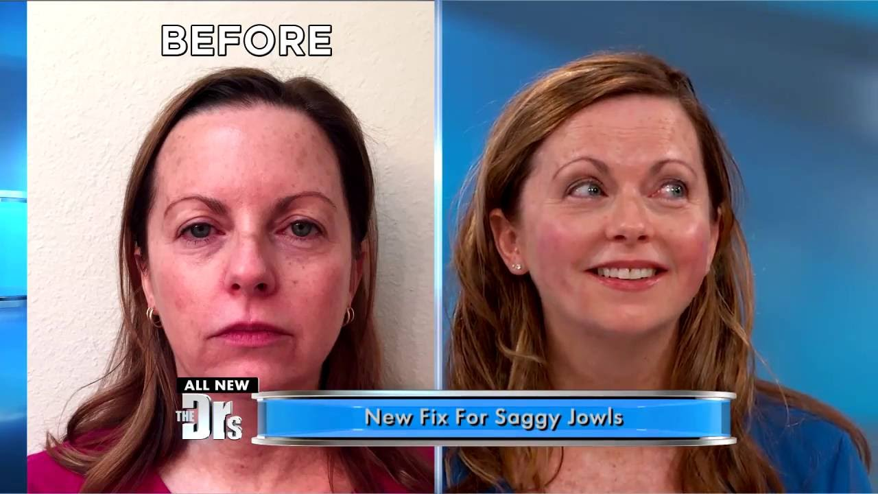 As seen in The Doctors: NovaLift Results