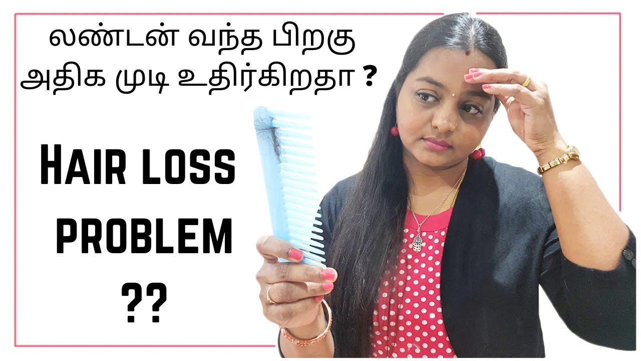 லண்டன் வந்த பிறகு அதிக முடி உதிர்கிறதா? Hair care Tips | Dandruff Solution | London Tamil Vlogs