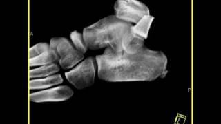 Musculoskeletal: Calcaneus fracture: Volume rendering