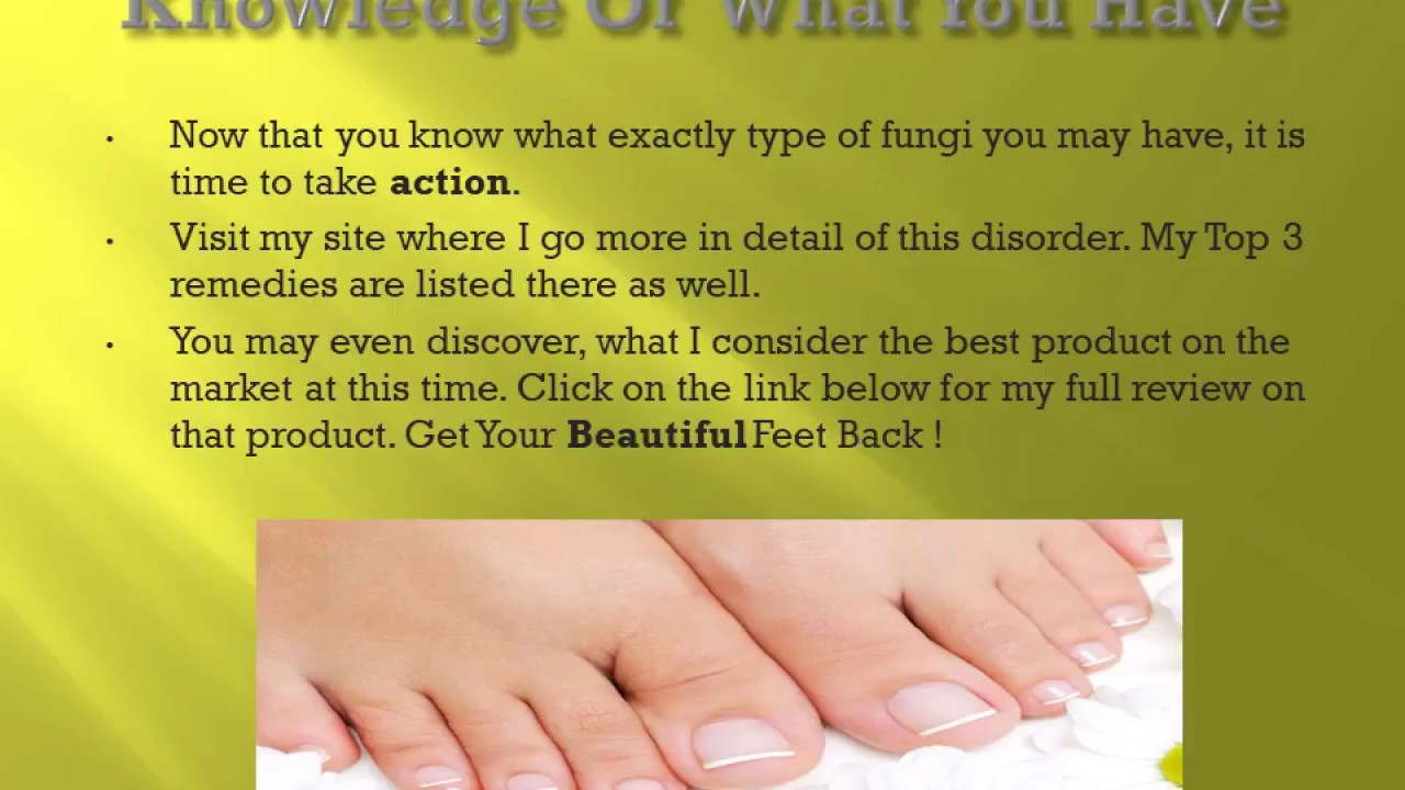 Yellow Toenail Remedies - How To Cure Yellow Toenails - YouTube