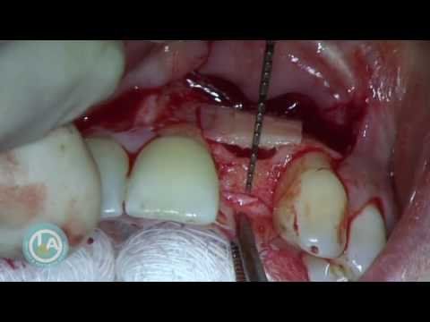 Bilateral Khoury Block - Dr Howard Gluckman
