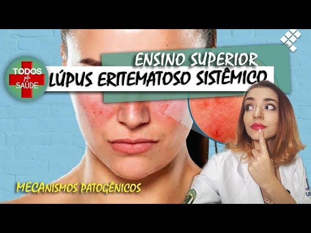 LÚPUS ERITEMATOSO SISTÊMICO - ENSINO SUPERIOR