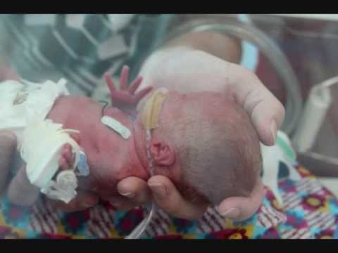 Thumbnail: Baby born at 27 weeks - Charlotte's First Year