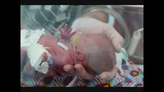 Baby born at 27 weeks - Charlotte's First Year(Story of a premature baby born 27 weeks gestation till 12 months on., 2013-04-10T12:42:03.000Z)