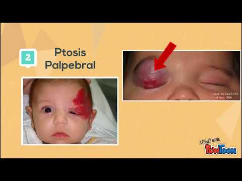 hemangioma capilar translation
