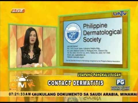 Contact Dermatitis: Skin Irritation