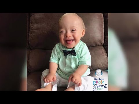 Lucas was named 2018 Gerber baby. He has Down syndrome.