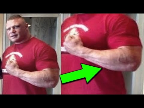 What's Wrong with Brock Lesnar's Arm? 10 Strangest Physiques of WWE Wrestlers Mp3