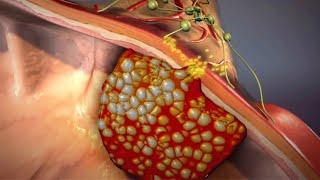 Чем опасны полипы кишечника? | О самом главном