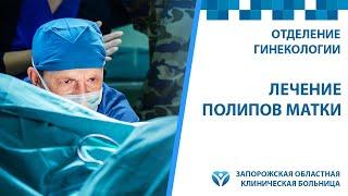 Гистерорезектоскопия: лечение полипов матки в Запорожской областной больнице(, 2015-09-16T10:21:16.000Z)