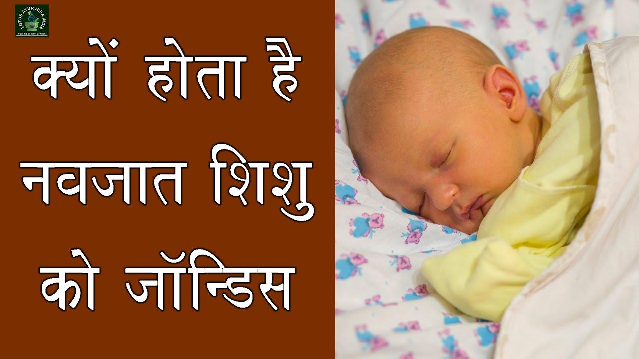 क्यों होता है नवजात शिशु को जॉन्डिस! || कारण व उपाय | reason for jaundice  in newborn baby
