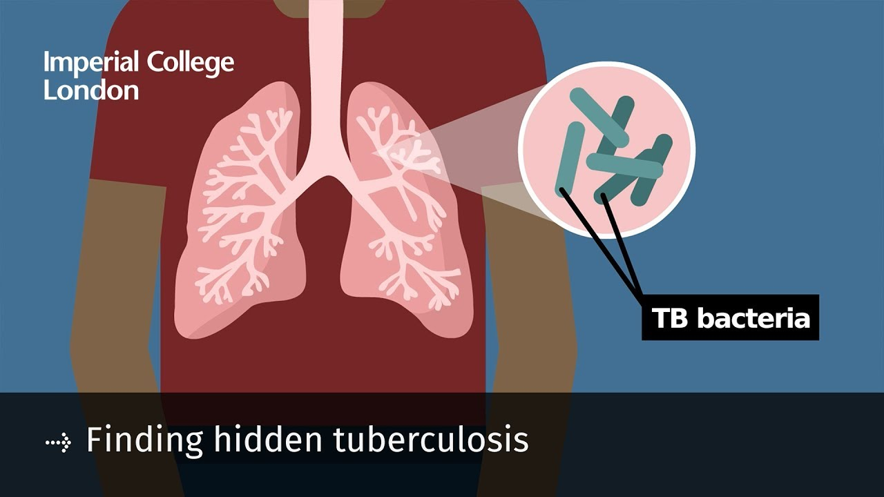 Signs of tuberculosis are hidden under the mask 70