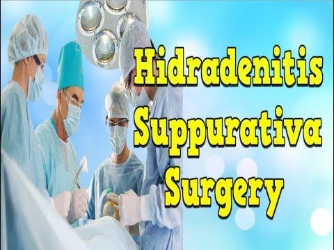 Hidradenitis Suppurativa Surgery, Hidradenitis Suppurativa Photos, Hidradenitis Suppurativa Nz