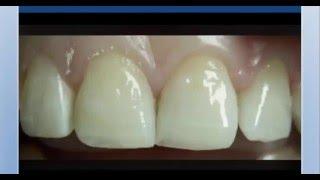 Эстетическая стоматология(, 2016-04-27T12:47:58.000Z)