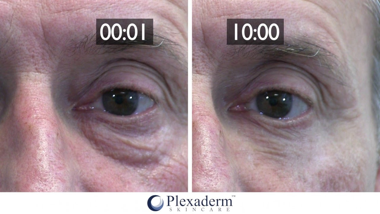 how much does plexaderm cost