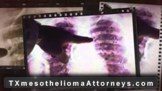 Texas Mesothelioma Lawyer | TX Mesothelioma Attorney - Asbestos Lawyer, TX