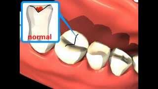 Как избежать фиссурный кариес?(Закрытие фиссур является испытанным средством профилактики кариеса и методом лечения, щадящим эмаль зубов..., 2013-11-23T18:20:41.000Z)