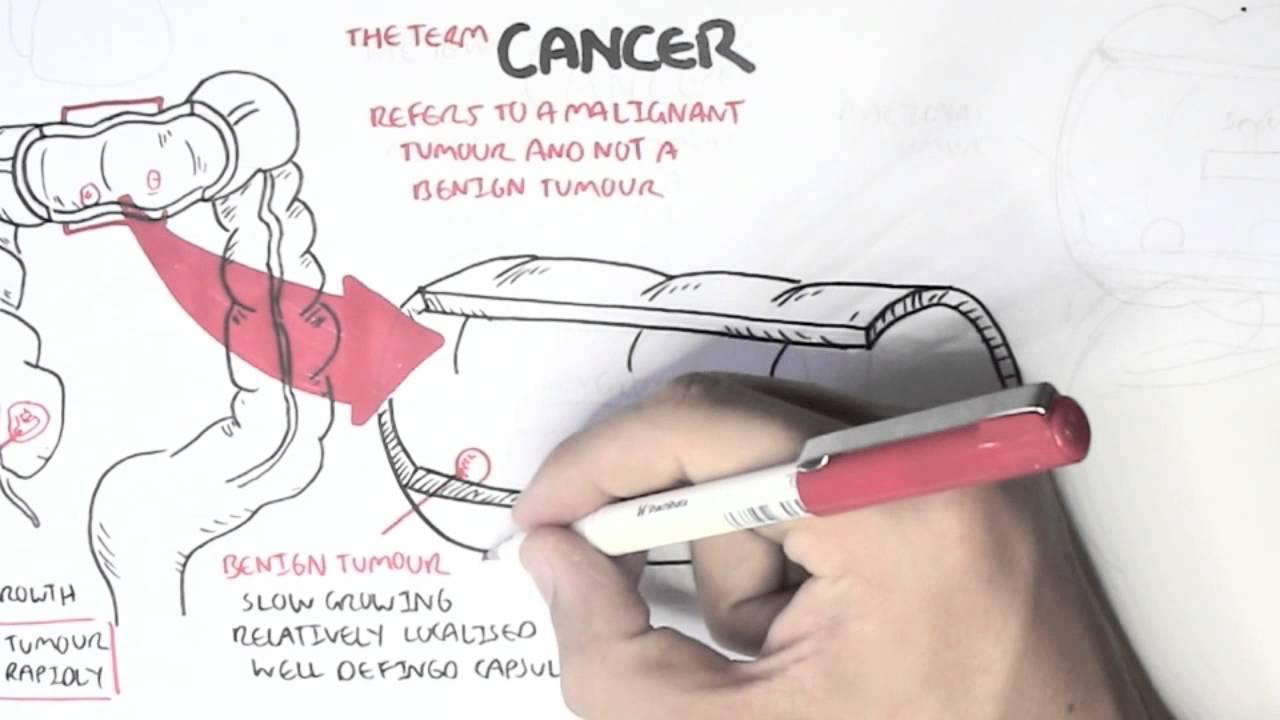 Cancer - Introduction I