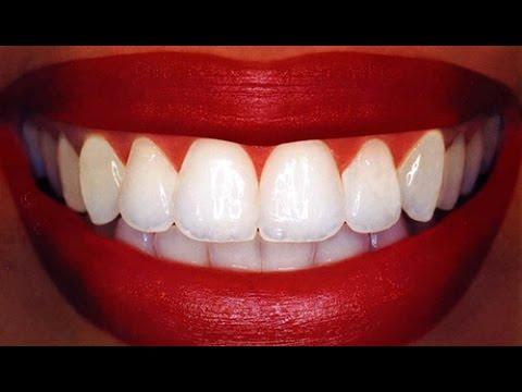Dentes Brancos Em 2 Minutos Receita Caseira Youtube