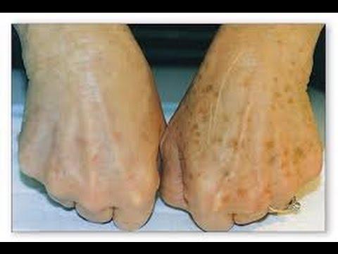 Skin Treatments Portland, Oregon   Cascade Medical Spa & Tattoo ...
