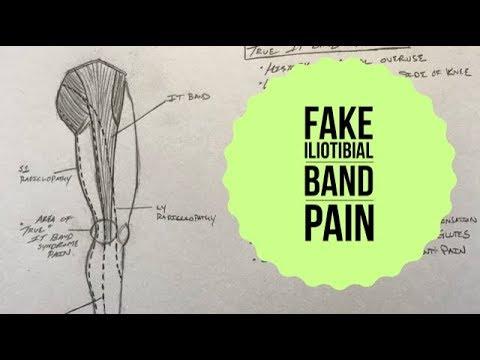 E200: True IT Band Syndrome vs Pseudo ITBS
