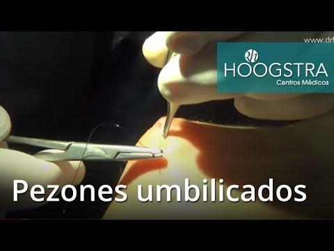 Pezones umbiliocados - IV SIMPOSIO (18067)