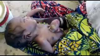 Baby born with his heart located outside his chest in Nigeria