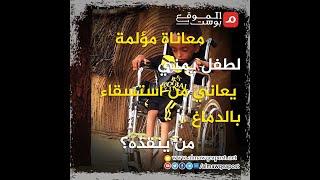 شاهد.. معاناة مؤلمة لطفل يمني يعاني من استسقاء بالدماغ .. من ينقذه؟