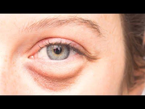 Отекает и болит глаз