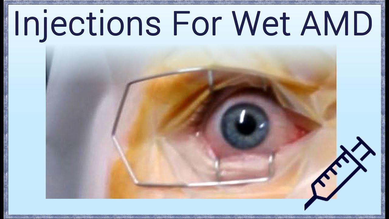 Injection Treatment for Wet Macular Degeneration - YouTube
