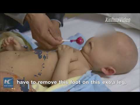 Chinese baby born with three legs has extra limb removed in Shanghai