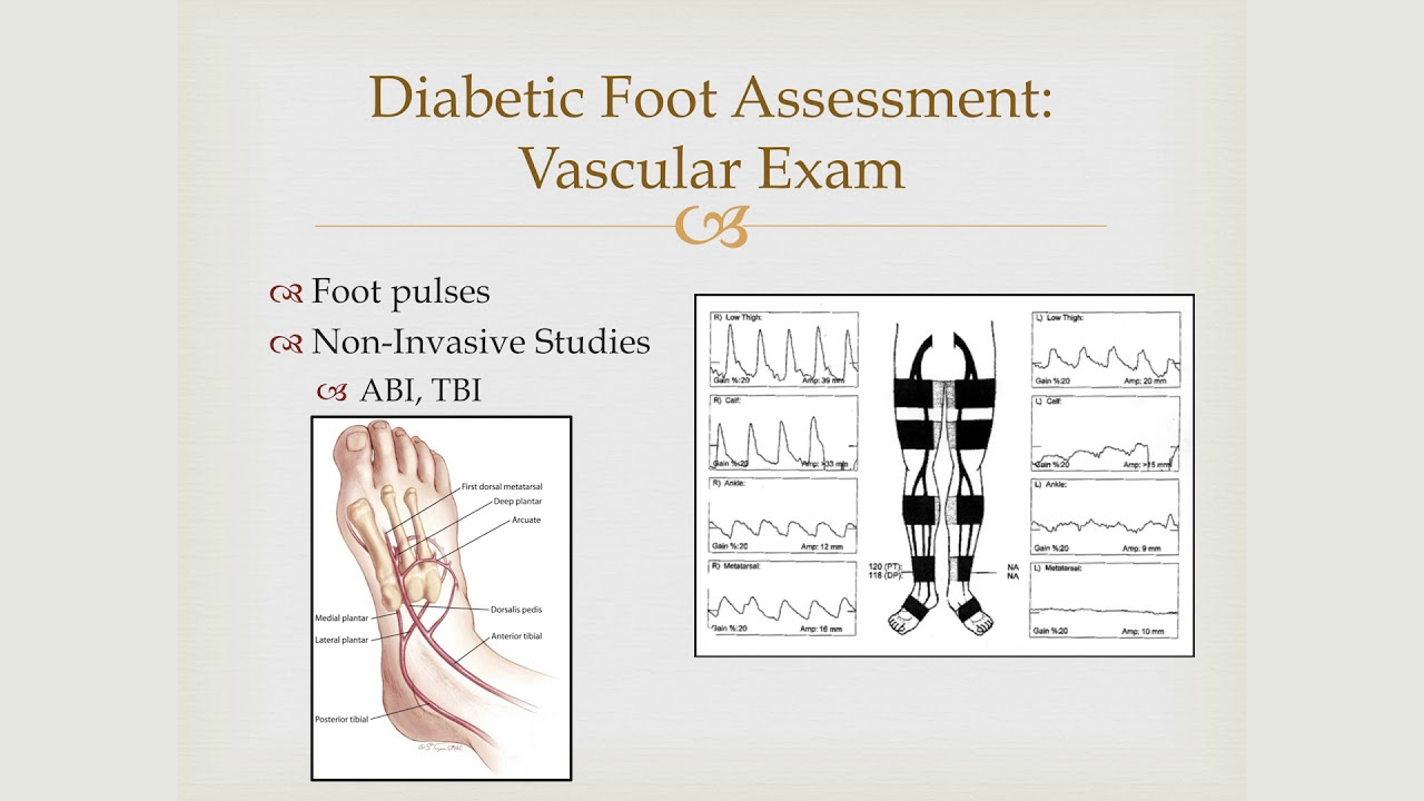 foot pulses diagram vdo marine fuel gauge wiring care in the ckd patient youtube